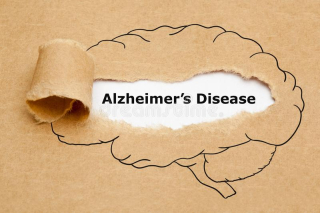 Alzheimers-disease-ripped-paper-concept-text-appearing-behind-brown-human-brain-drawing-149115966